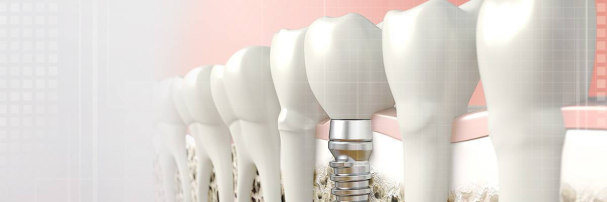 Dental Implants Photo