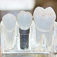 Dental Implants Close-up