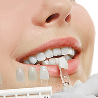 Photo of Dental Veneers