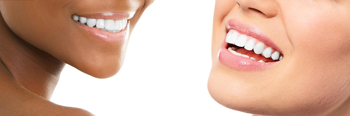 teeth whitening Roswell GA